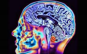 braine image